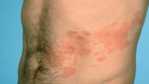 Лечение опоясывающего лишая с помощью ароматерапии