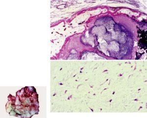 Нейромускулярная гамартома (доброкачественная тритон-опухоль)