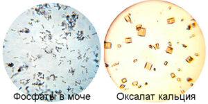 Кристаллы оксалатов при беременности