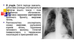 Легеневий малюнок збагачений