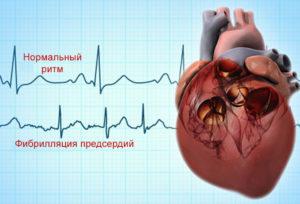 Неправильный ритм сердца (аритмия)
