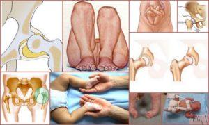 Замедленное формирование тазобедренных суставов