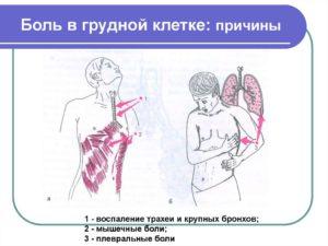 Бросил курить, начались боли в грудной клетке