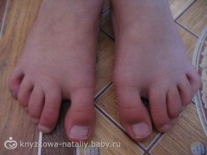 У ребенка перестал расти палец на ноге