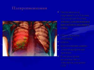Плевропневмония?