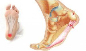 Симптомы болезни - боли в пятке во время ходьбе