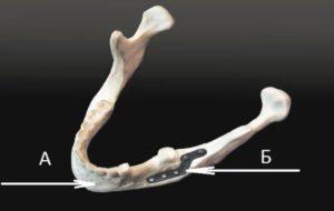 Титановые пластины в челюсти