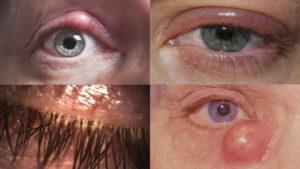 Лечение блефарита, или воспаление края век