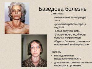 Симптомы болезни - эндокринные нарушения