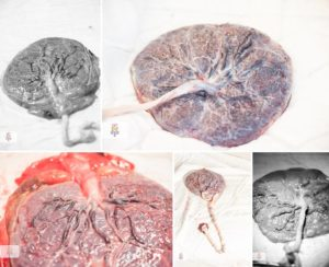 Рыхлая плацента