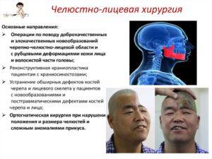 вопрос челюстно-лицевому хирургу