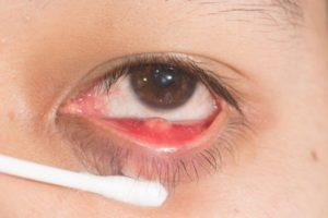 Кровоточит ячмень на глазу. Ребенку 2 года.