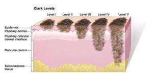 Система стадирования меланомы