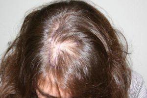 Реактивное выпадение волос