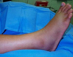 Симптомы болезни - боли после перелома
