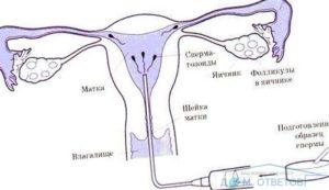 Возможно ли забеременеть от маленькой капли спермы