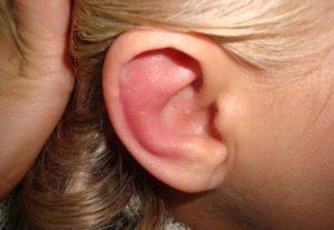 Симптомы болезни - боли в ухе у ребенка