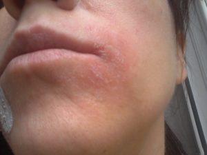 Шелушение кожи зимой