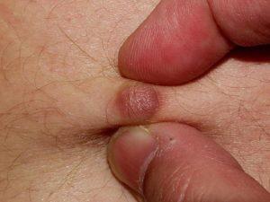 в районе анального отверстия появился подкожный болевой твердый шарик