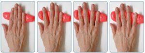 Ревматоидный артрит и упражнения