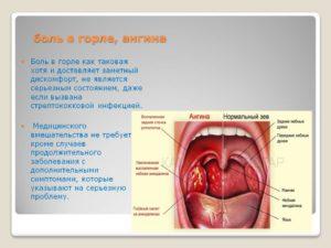 Режущая боль в горле!
