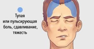 Синусовые головные боли