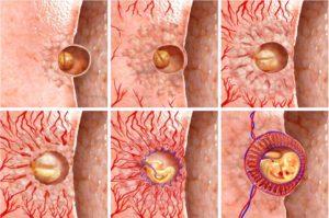 Спазм ШМ при переносе эмбриона