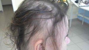 У девочки 10 лет выпадают волосы