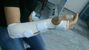 Лечение переломов костей