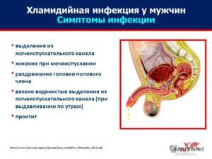 Симптомы болезни - боли в половом члене