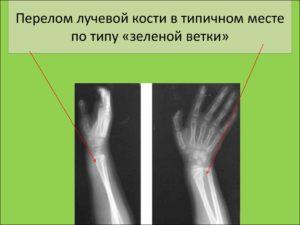 Перелом лучевой кости в типичном месте со смещением у ребенка.