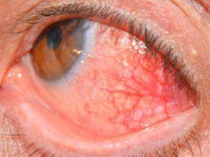 Симптомы болезни - глазные боли