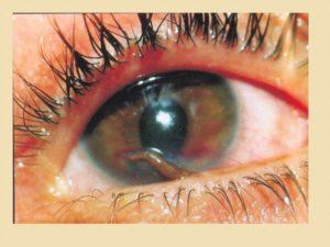 Контузии органа зрения