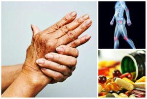 Артрит: пищевые добавки
