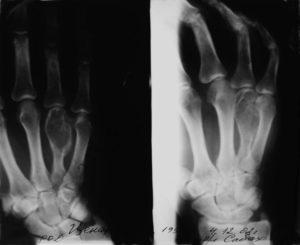 Энхондрома пятой пястной кости левой кисти