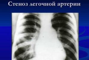 Стеноз легочной артерии.Гипоплазия носовой кости.