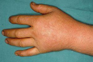 опухшие конечности(кисти рук)