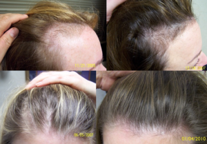 Выпадение волос из-за приема гормональных препаратов