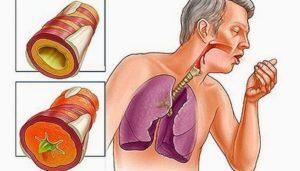 Хр. бронхит или астма...