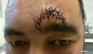 Резаная рана на лбу