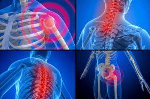 Фибромиалгия и нетрудоспособность