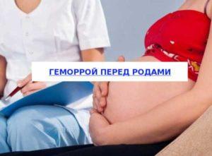 геморрой на 38 недели беременности