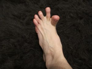 не поднимаются пальцы ноги вверх