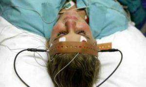 Лечение электрошоком