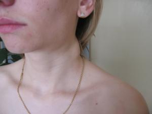 Увеличиваются лимфоузлы на шее