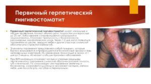 Симптомы болезней, Боли – Щ