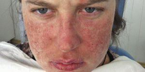 Лечение системной красной волчанки в домашних условиях
