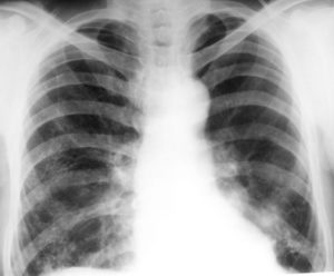 Рентген ОГП