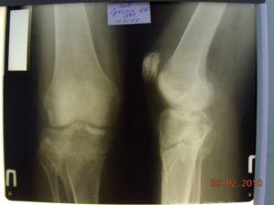 Краевой перелом медиального мыщелка правой большеберцовой кости. ВСПКС