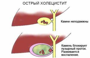 Острый холецистит